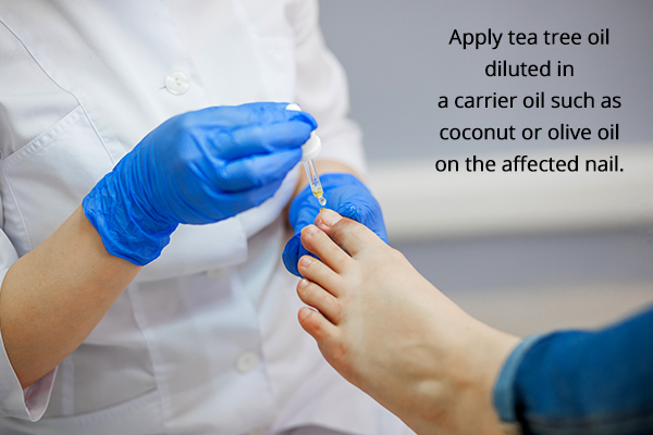 several topical antibiotics can help dry out ingrown toenails