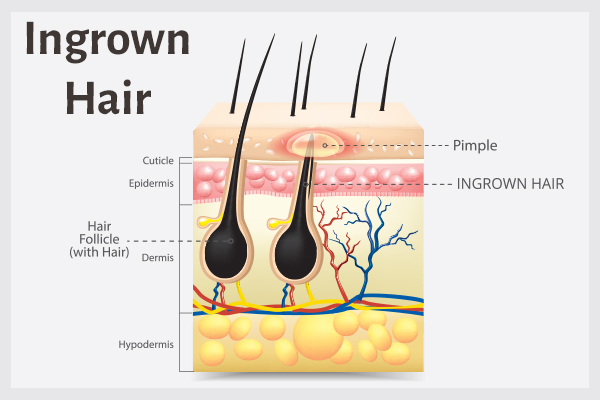 factors that can cause ingrown hair growth