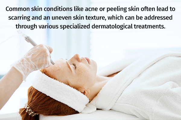 medical procedures to obtain smooth, clear skin
