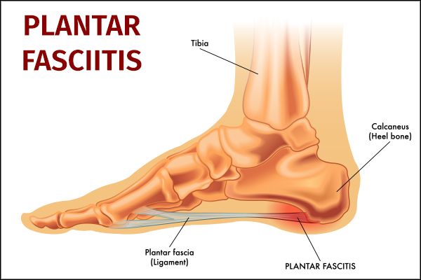 common causes behind plantar fasciitis