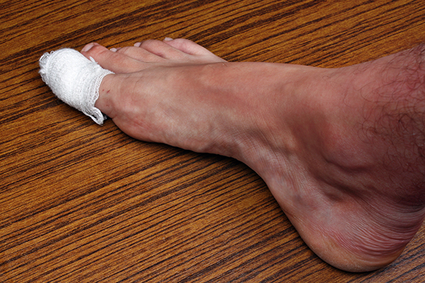 complications of untreated ingrown toenails