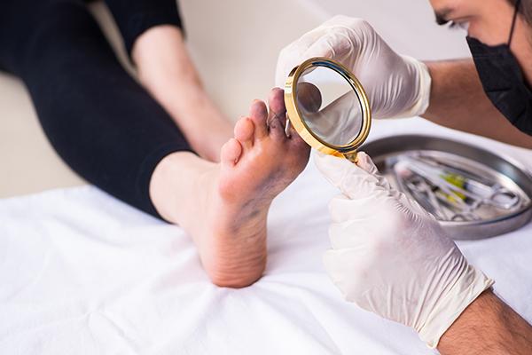 diagnosis of a foot corn