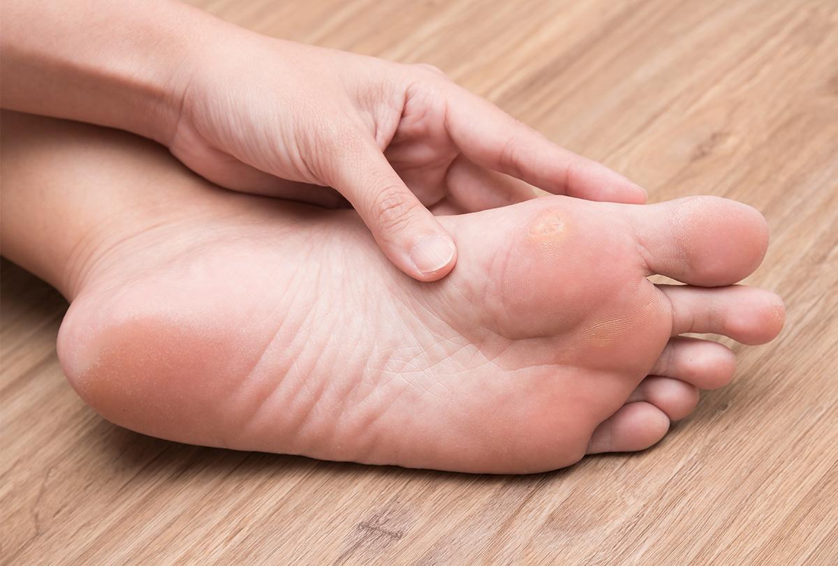 foot corn
