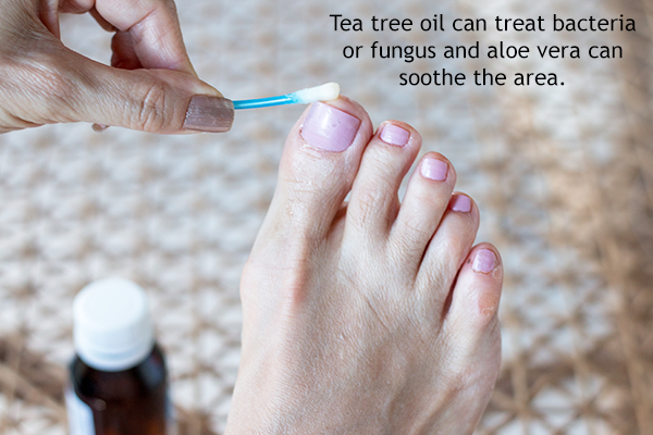 treatment for foot rashes