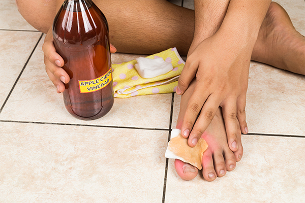 efficacy of acv and hydrogen peroxide in foot infections
