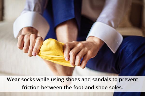 measures to prevent foot corns