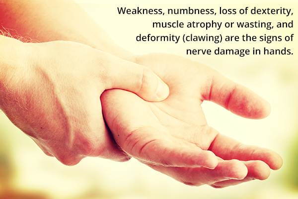 signs and symptoms of nerve damage in the hands