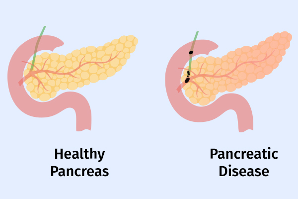 signs and symptoms of acute pancreatitis