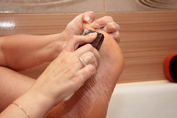treating foot corns
