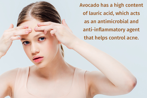 avocado can help manage and control acne