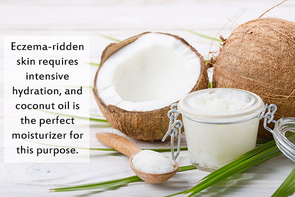 coconut oil can help reduce dryness caused by eczema