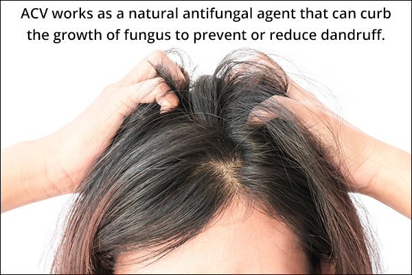 acv can help curb scalp infections