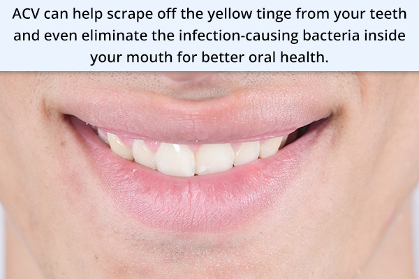 acv can help whiten stained teeth