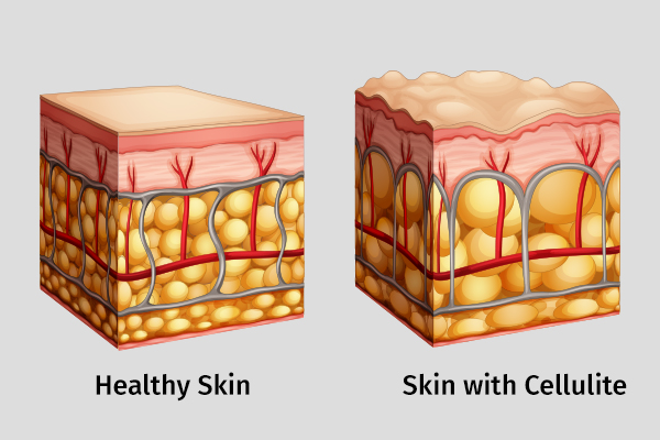 medical treatment options for cellulite