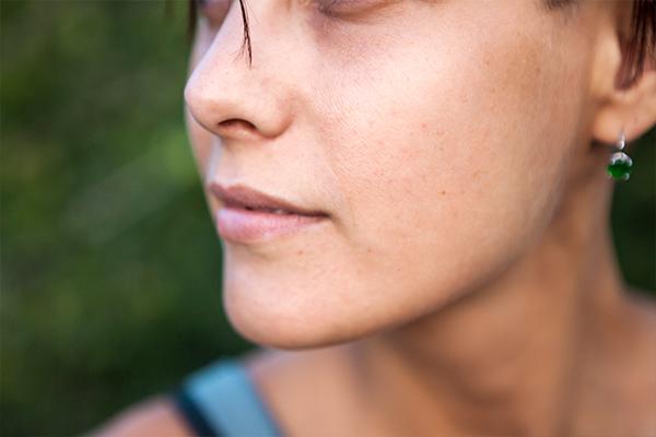 general queries about hyperpigmentation