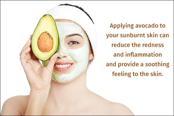 avocado can help soothe sunburnt skin