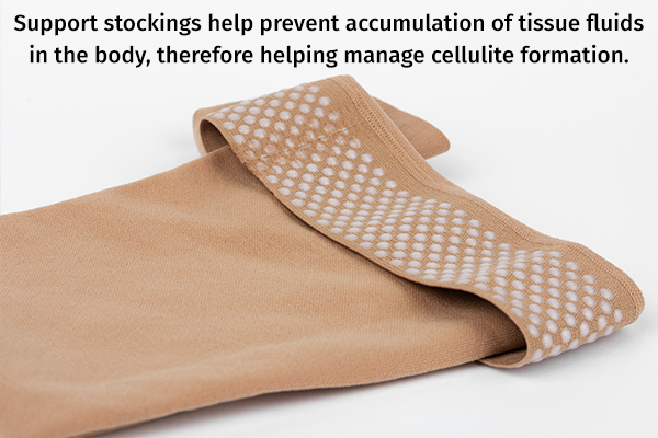 wear support stockings to help manage cellulite formation