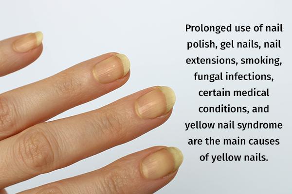 causes behind yellow nails
