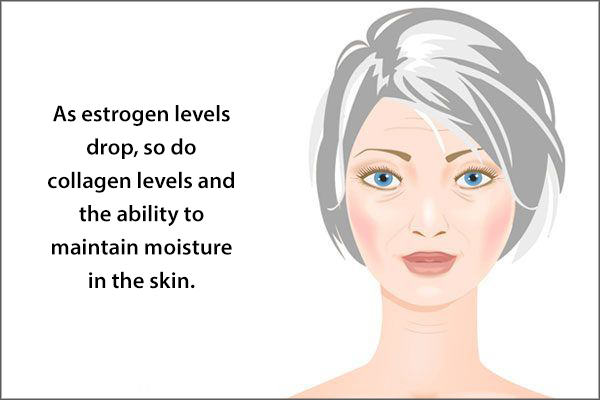 extreme skin dryness can be experienced during menopause
