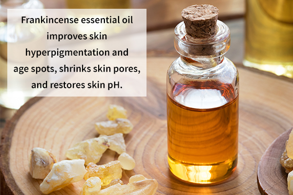 frankincense essential oil improves skin hyperpigmentation and age spots