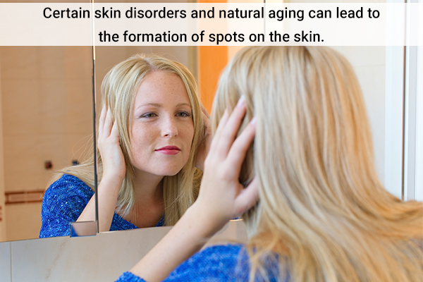 argan oil application can help reduce hyperpigmentation