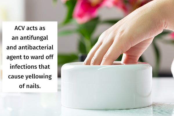 soaking your nails in acv can help ward off nail infections