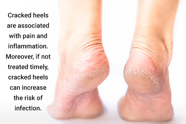cracked heels can be treated with help of argan oil