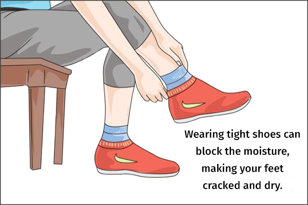 wear shoes with a good fit
