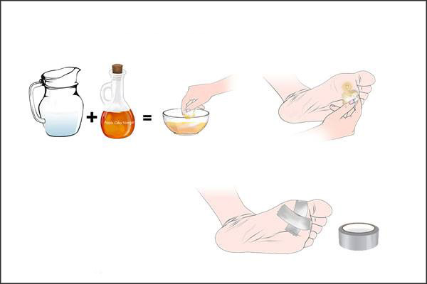 acv can be used to heal plantar warts