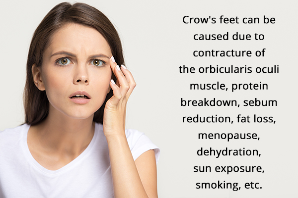 what causes crow's feet?