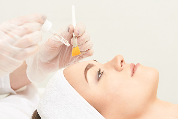 chemical peels can help exfoliate clogged pores