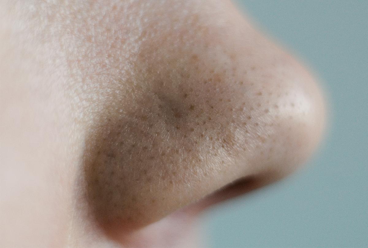 get rid of clogged pores