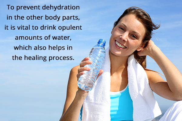 drinking water regularly helps in proper healing of sunburnt areas
