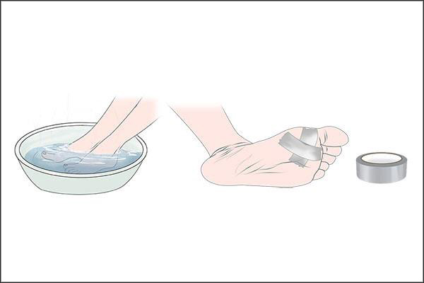 duct tape can be applied to soothe plantar warts
