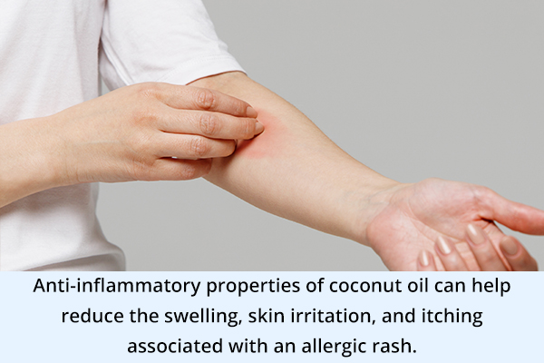 coconut oil can help soothe allergic rashes