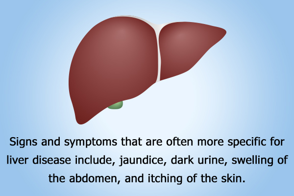 signs and symptoms of liver damage