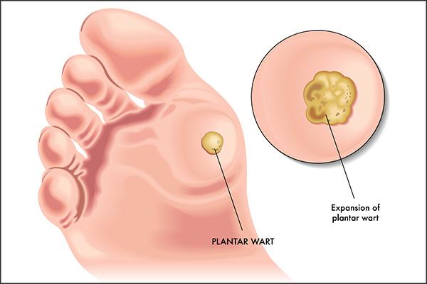 medical treatment for plantar warts