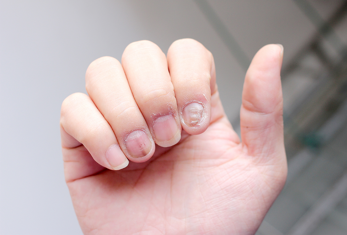 tips to prevent nail infections