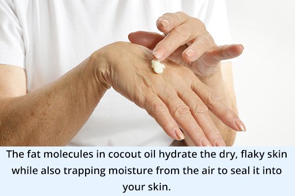 coconut oil can help treat xerotic skin