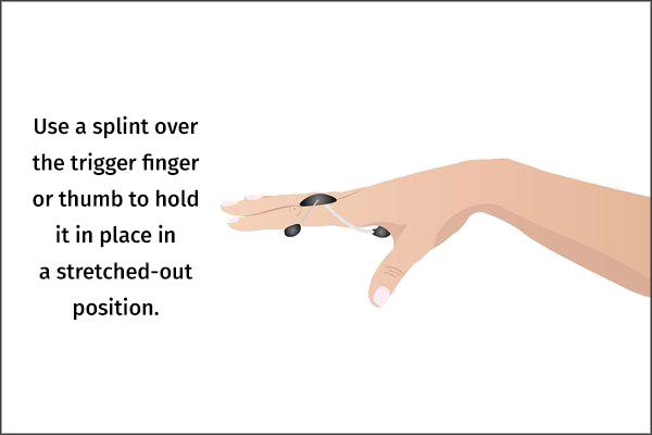 use a splint over the trigger finger