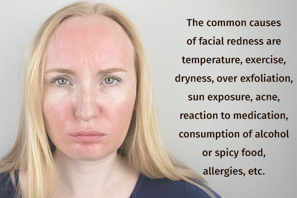 common causes behind facial redness