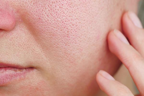symptoms of facial redness