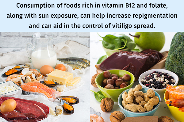 foods rich in vitamin b12 and folate can help manage vitiligo
