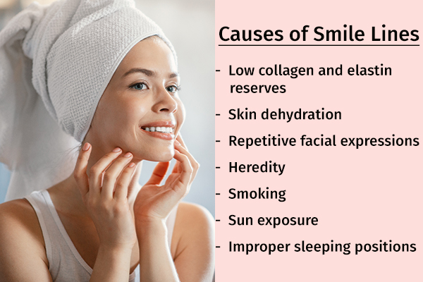 what causes smile lines?
