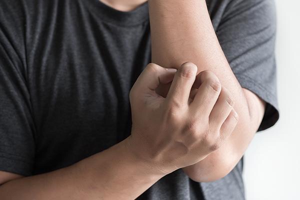 symptoms of dry, scaly elbow
