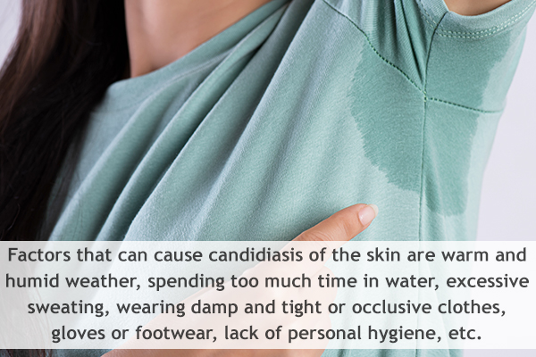 factors that can cause cutaneous candidiasis