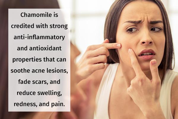 chamomile usage can help fade acne