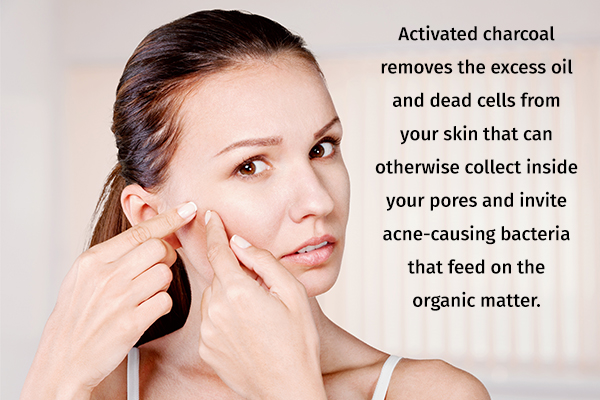 activated charcoal usage can help clear acne
