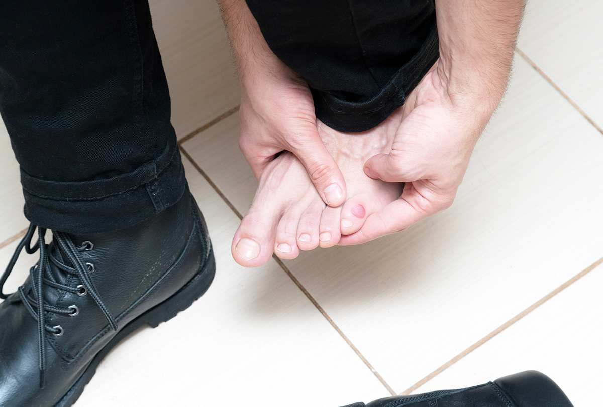 foot vesicles or blisters causes