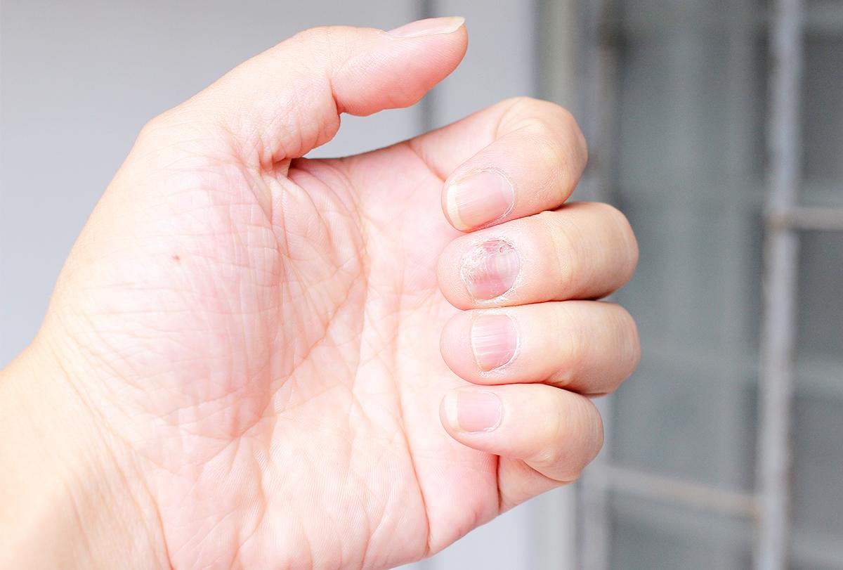 nail psoriasis causes